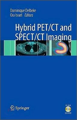 Hybrid PET/CT and SPECT/CT Imaging : A Teaching File