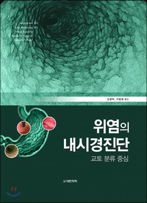 위염의 내시경 진단