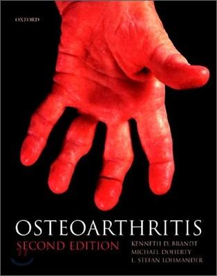 Osteoarthritis, 2/E