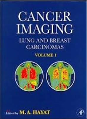 Cancer Imaging : 1-2 Volume Set