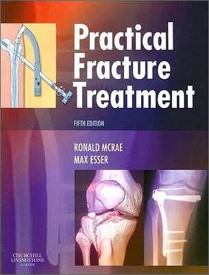 Practical Fracture Treatment, 5/E
