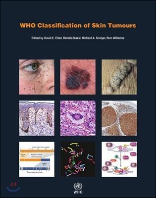 WHO Classification of Skin Tumours, 4/E
