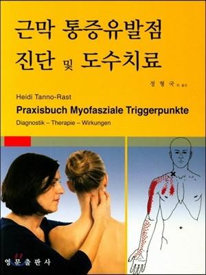 근막 통증유발점 진단 및 도수치료