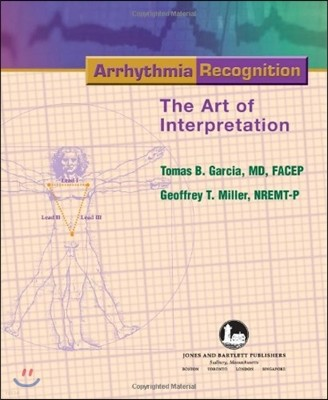 Arrhythmia Recognition : The Art of Interpretation