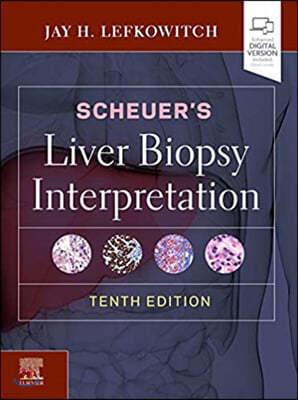 Scheuer's Liver Biopsy Interpretation, 10/E
