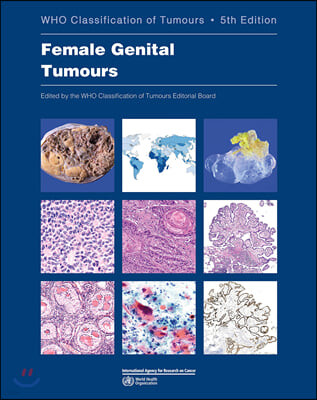 Female Genital Tumours: Who Classification of Tumours
