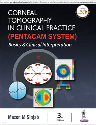 Corneal Tomography in Clinical Practice (Pentacam System): Basics and Clinical Interpretation