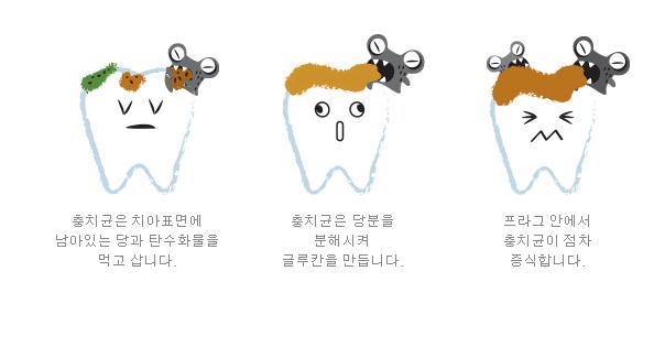 출처_ 충치예방연구회.png