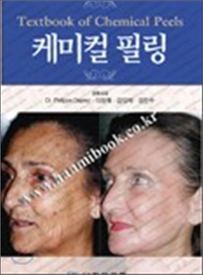 케미컬 필링